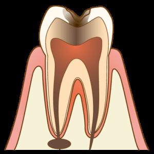 虫歯の画像