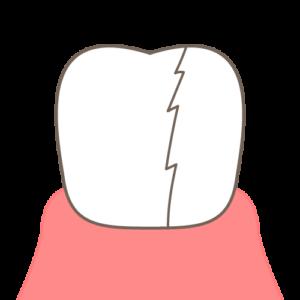歯が割れた画像